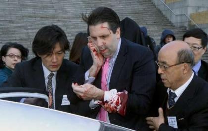 दक्षिण कोरियामा अमेरिकी राजदूत घाइते
