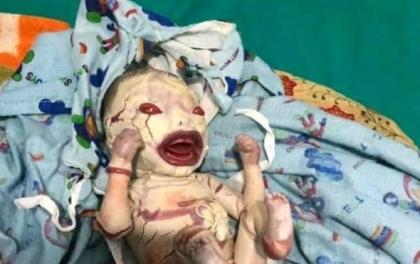 कञ्चनपुरमा जन्मियो अनौठो शिशु
