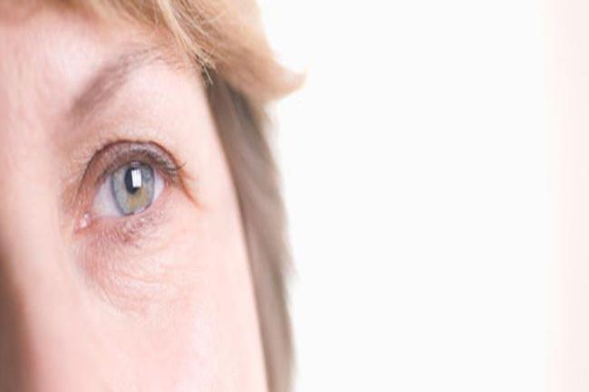 3 eye